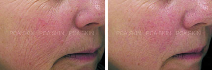 Chemical peel before/after photo