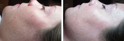 Dermaplaning before/after photo