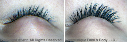Eyelash Extensions before/after photo