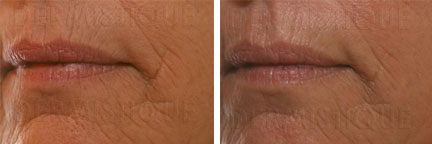 HydroPeptide before/after photo