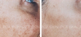 chemical-peel-2